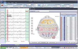 EEG Software Montage Manager