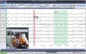EEG Software Video Recording