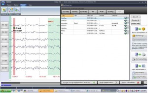EEG Software Annotate Report